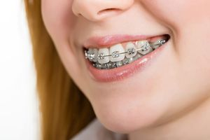 dentist-in-poway
