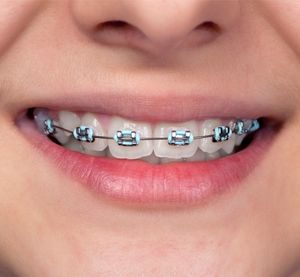 wisdom-oral-health-orthodontic-braces