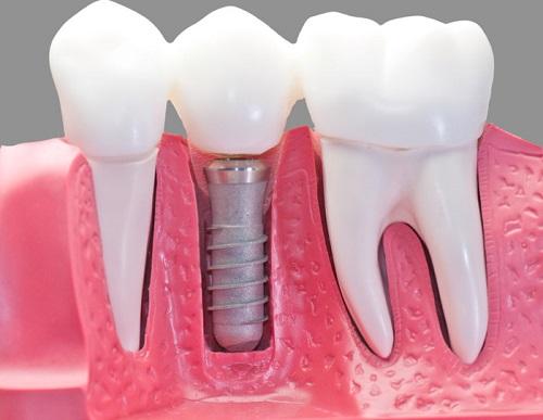 protezirovanie-zubov-1